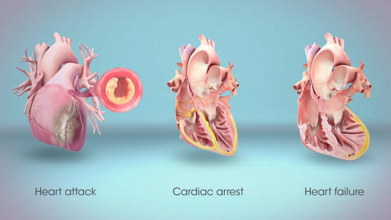 6 Warning Signs Your Body Gives You Before a Heart Attack