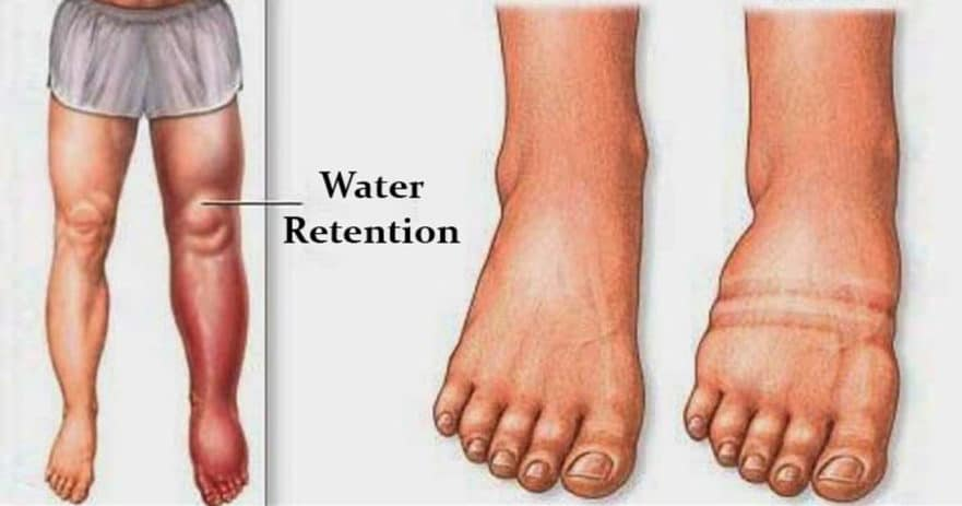 Here Is What Causes Water Retention, Bloating And How to Avoid It