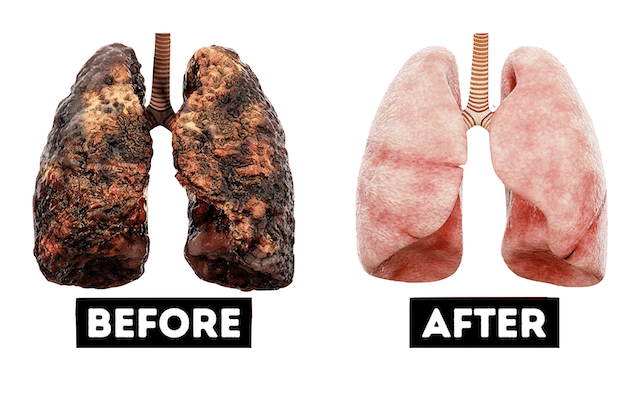 How to Naturally Detox Your Lungs
