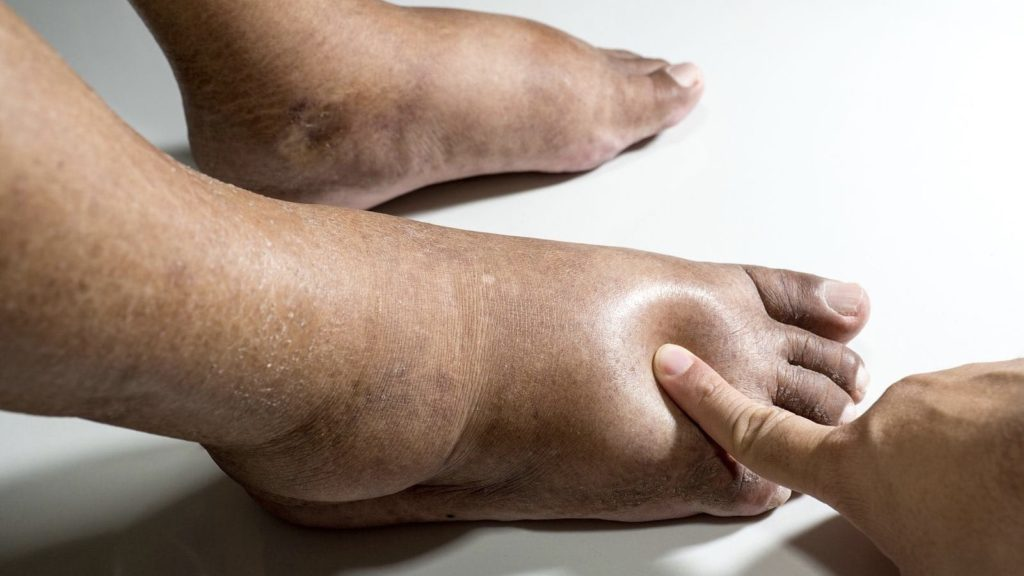 10 Things That Cause Swollen Legs And How to Fix It